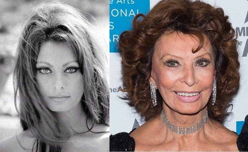 Famosas antes y después, que acuden a la cirugía estética